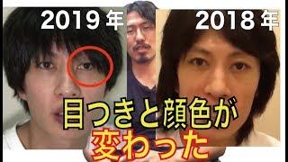 【心配】BAN確実な遠藤チャンネルの顔が激変してる件